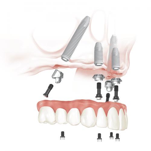 All on 4 procedure - Dental 359 Subiaco