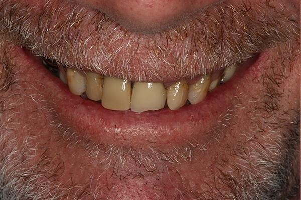 Cosmetic Dentist - Dental 359 Subiaco