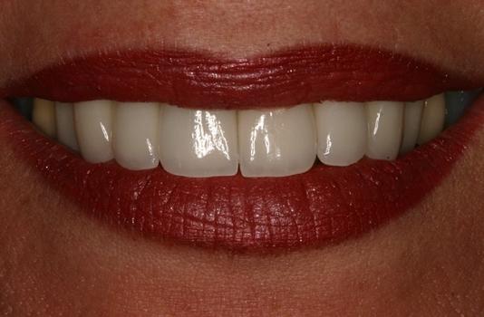 Smile Makeover | Smile Cosmetic Dentistry | Dental 359