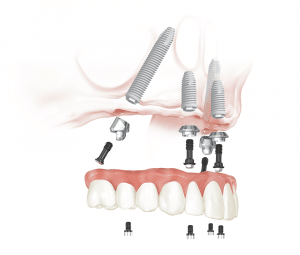All on 4 procedure - Dental 359 Perth