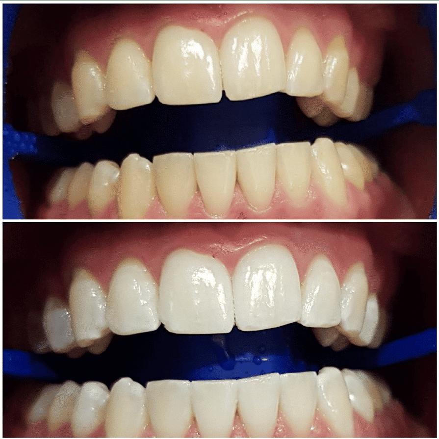 Teeth Whitening Perth Professional Teeth Whitening Dental 359